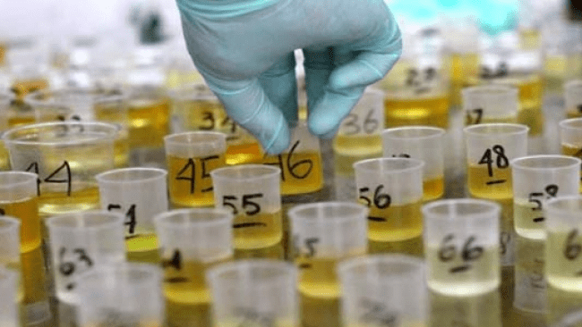 Pemkot Lakukan Tes Urine Sopir Angkutan Mudik