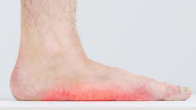 Warna Jari Kaki Bisa Jadi Indikasi Penyakit Tertentu Lho, Yuk Cek Disini!