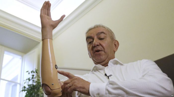 Teknologi Robotik Bantu Penyandang Disabilitas Bergerak
