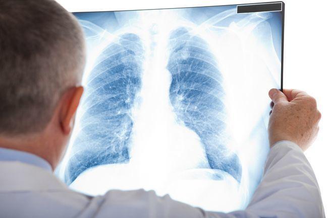 Apa itu Pneumonia Berikut Penjelasannya